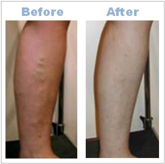varicose_vein_before_after